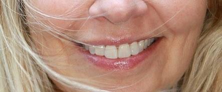 Stomatolog - leczenie zębów